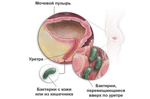 Симптомы болезней и нарушений в работе мочевого пузыря у женщин