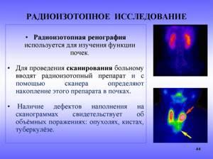 Радиоизотопные методы исследования в урологии