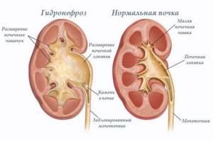 Расширенная лоханка почки у взрослого лечение