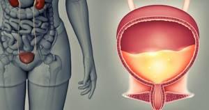 Шеечный цистит лечение. симптомы