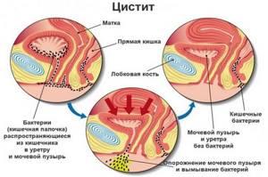 Цистит шейки мочевого пузыря лечение