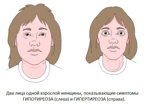 Заболевание надпочечников симптомы у мужчин