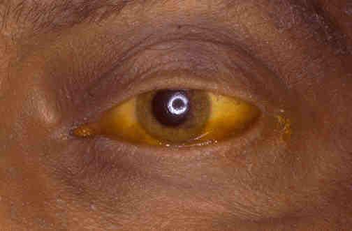 Обтурационная желтуха – следствие непроходимости желчных протоков