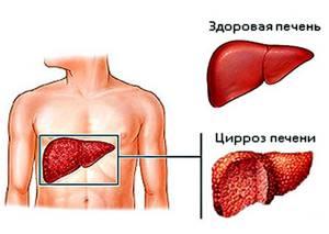 Печень при гепатите С постоянно подвергается деструкции