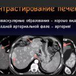 Гиподенсивное образование в печени – затемненный очаг на снимке