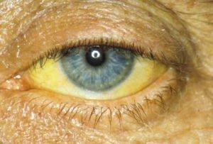 Носитель гепатита b: меры профилактики развития болезни