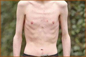 Билирубин при циррозе печени позволяет определить стадию развития болезни