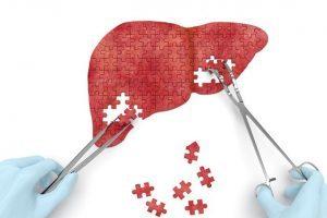 Портальный цирроз печени – следствие ряда гепатотропных факторов