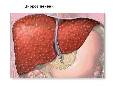 Связки печени – фиксирующее природное приспособление органа