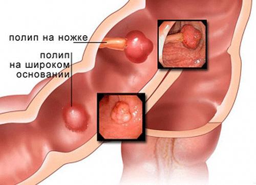 Полипы в печени – разрастания слизистой желчных протоков