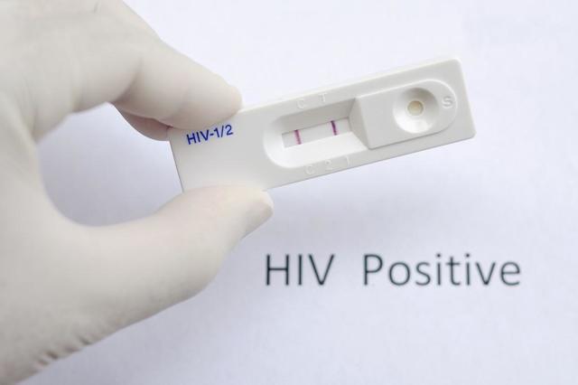 Анализ на гепатит и ВИЧ входит в комплекс обязательных обследований