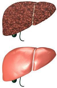 Как передаётся цирроз печени: способы заражения и виды защиты