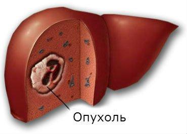 Доброкачественная опухоль печени – новообразование, требующее лечения