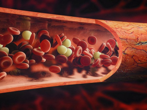 Анализ крови при циррозе печени: показатели, отклоняющиеся от нормы