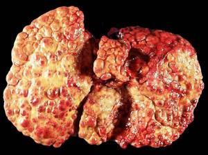 УЗИ печени при циррозе: описание и информативность процедуры