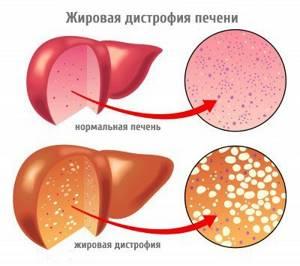 Неинфекционный гепатит – поражение клеток печени невирусной этиологии
