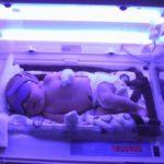 Фототерапия при желтухе новорожденных как успешное лечебное направление