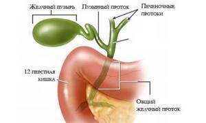 Холестатический гепатит – воспаление, вызванное нарушениями желчеоттока