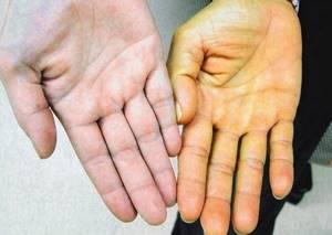 Синдром Жильбера: берут ли в армию с таким диагнозом