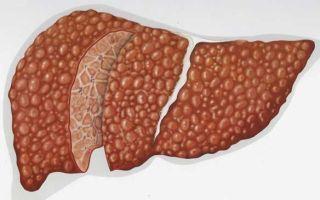 Температура при циррозе печени – частый признак опасной болезни