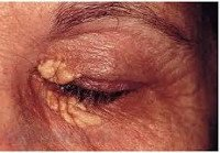 Билиарный цирроз печени: причины, симптомы, лечение