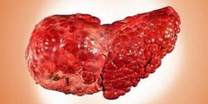 Алкогольная болезнь печени – разрушение органа под действием алкоголя