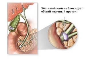 Обструкция желчевыводящих путей: что это такое и как лечить
