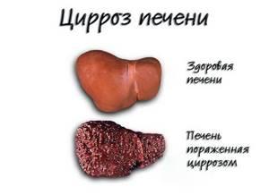 Начальная стадия цирроза печени: первые проявления и методы терапии