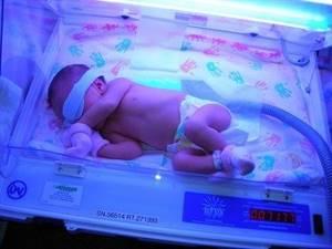 Анализ на билирубин у новорожденных – необходимое исследование