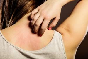 Холестаз у ребенка – сбой в работе печени с характерными симптомами