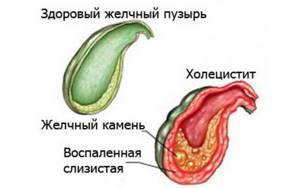 Аллохол при холецистите: действие препарата и особенности применения