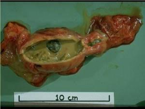 Эмпиема желчного пузыря – скопление гноя в полости мешковидного органа