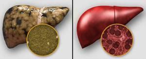 При понижении холестерина учитывают, как статины влияют на печень