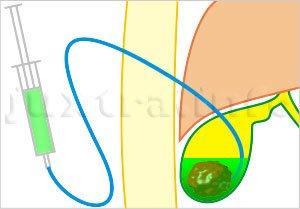 Хенодезоксихолевая кислота как неотъемлемая часть печеночного секрета