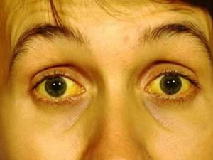 Холестатическая желтуха – нарушение проходимости желчевыводящих путей