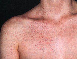 Больная печень: прыщи как кожные симптомы, говорящие о нарушениях