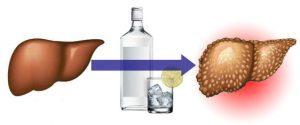 Интоксикация печени – воздействие токсинов, разрушающих гепатоциты