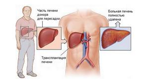 Регенерация печени – естественный процесс самовосстановления органа