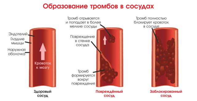 Анализ крови АЛТ: что это и как его правильно проводить?