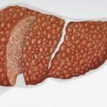 Портальная вена печени: норма – показатель здорового состояния