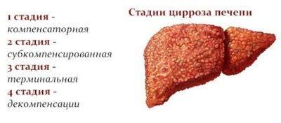 Субкомпенсированный цирроз печени – диффузное поражение без осложнений