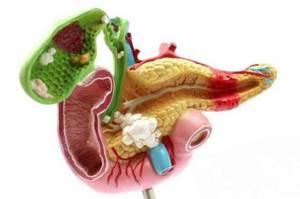 Приступ желчнокаменной болезни: симптомы острого состояния