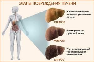 Декомпенсированный цирроз печени – необратимое поражение органа