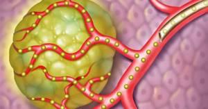 Химиоэмболизация печени: методика противоопухолевой терапии