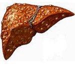 Насколько опасен первичный билиарный цирроз печени и как его лечить