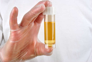 Цвет мочи при гепатите меняется при нарушении обмена билирубина