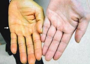 Гепатит инфекционный: виды, симптомы, способы терапии