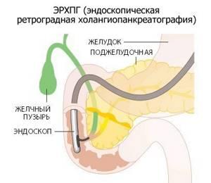 Методы диагностики желчного пузыря – развернутая система исследований