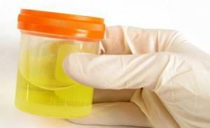 Повышенный билирубин при беременности: почему возникает и как понизить