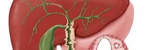 Увеличен желчный пузырь: причины, лечение и осложнения болезни